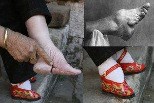 foot_binding